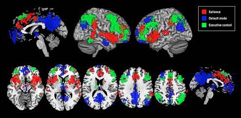 Нейрофизиология гипноза